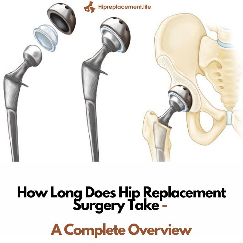 How Long Does Hip Replacement Surgery Take – A Complete Overview