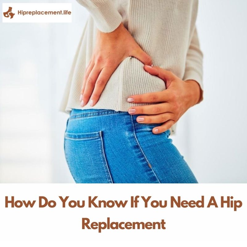 How Do You Know If You Need A Hip Replacement