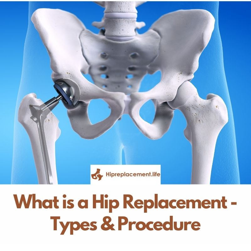 What is a Hip Replacement – Types & Procedure